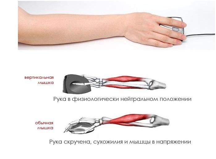 Положение мышц руки при пользовании компьютерной мышкой