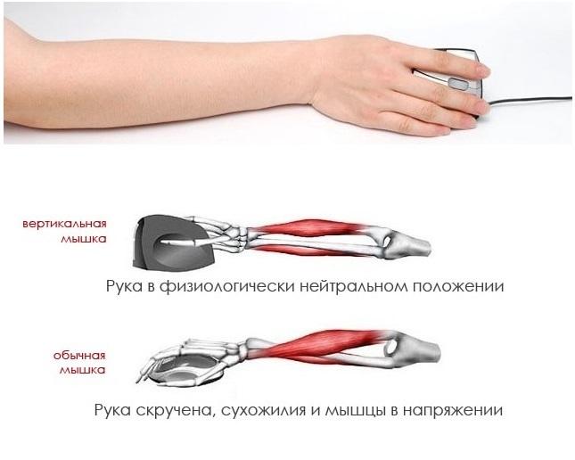 Положение мышц руки при работе компьютерной мышью